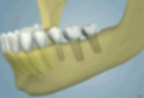 oral_surgery-ridge_augmentation_12(1).jp