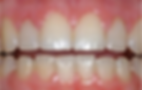 cosmetic_periodontal_treatment_08.png