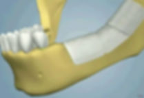 oral_surgery-ridge_augmentation_10(1).jp