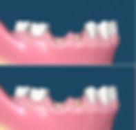 oral_surgery_02(1).jpg