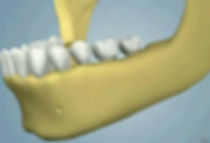 oral_surgery-ridge_augmentation_13(1).jp