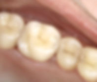 dental_crown_13.jpg