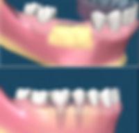 oral_surgery_06.jpg