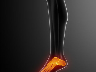 Do You Have Foot, Heel or Back Pain? We Can Fix That.