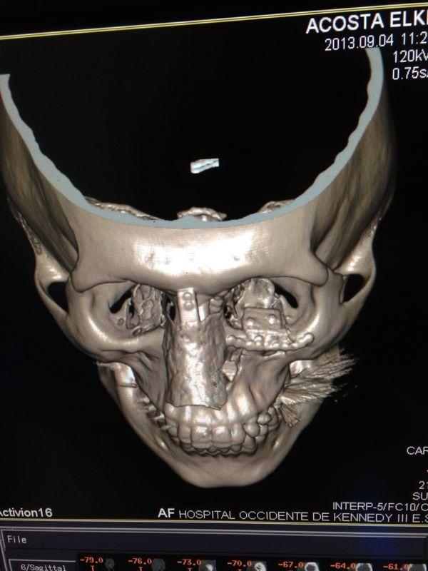 Rx fractura piso de orbita y huesos propios de la nariz.jpg