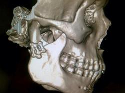 Rx lateral fractura de condilo