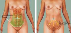 abdominoplastia2.jpg
