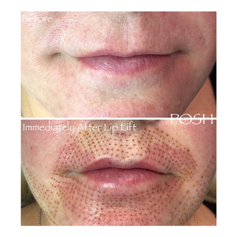 Posh Aesthetics, Santa Monica - Lip Lift, Fibroblast Plasma Skin Tightening