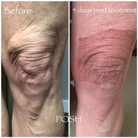 Posh Aesthetics, Santa Monica - Fibroblast Plasma Skin Tightening
