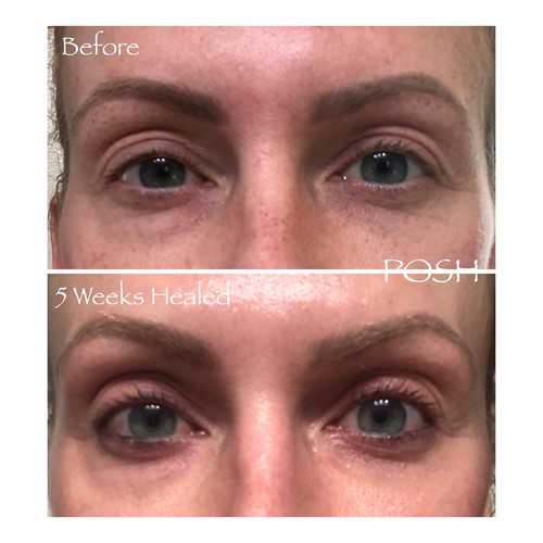 Posh Aesthetics, Santa Monica, Full Eye Plasma Fibroblast - Non-Surgical Blephroplasty