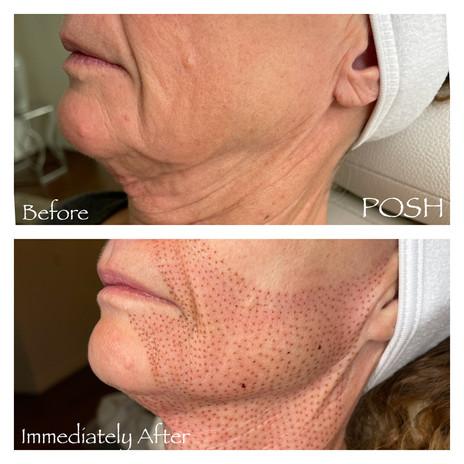 Posh Aesthetics, Santa Monica, Fibroblast Plasma Skin Tightening