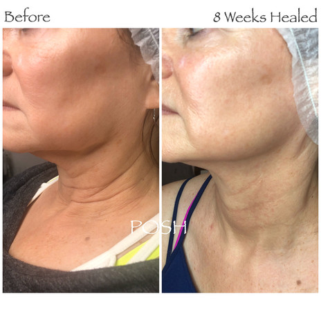 Posh Aesthetics, Santa Monica, Double Chin & Full Neck Plasma Fibroblast Skin Tightening