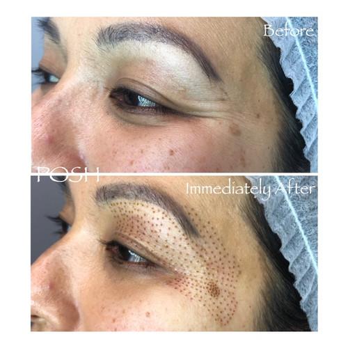 Posh Aesthetics, Santa Monica - Upper Eye Lift & Crows Feet, Fibroblast Plasma Skin Tightening