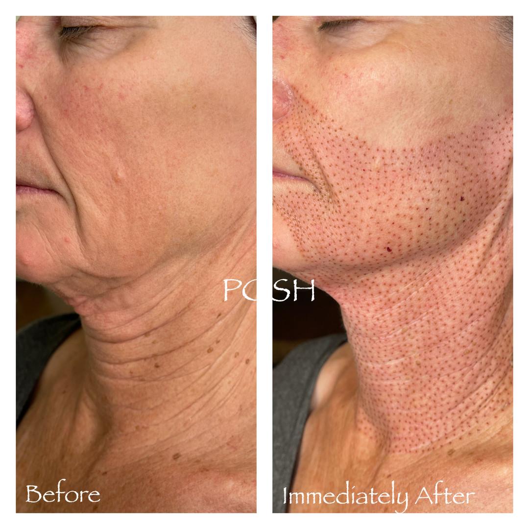 Posh Aesthetics, Santa Moncia, Jowl & Full Neck Fibroblast Plasma Skin Tightening