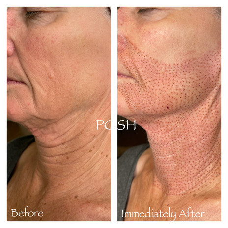 Posh Aesthetics, Santa Moncia, Jowl & Full Neck Fibroblast Plasma Skin Tightening