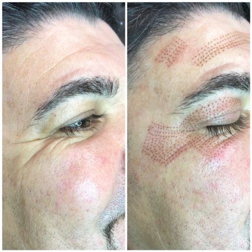 Posh Aesthetics, Sant Monica - Fibroblast Plasma Skin Tightening