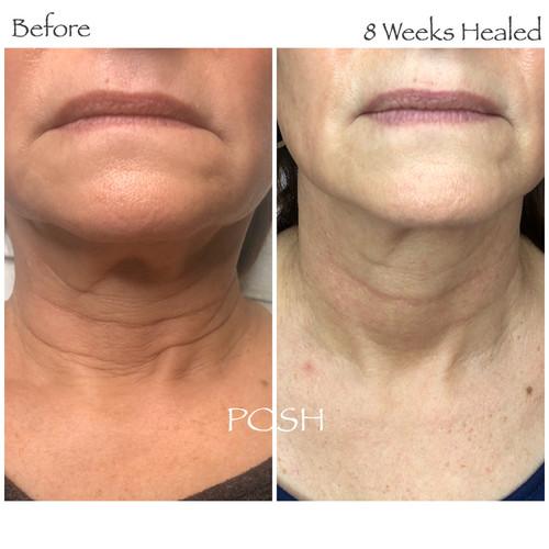 Posh Aesthetics, Santa Monica, Double Chin & Full Neck Plasma Fibroblast Skin Tightening
