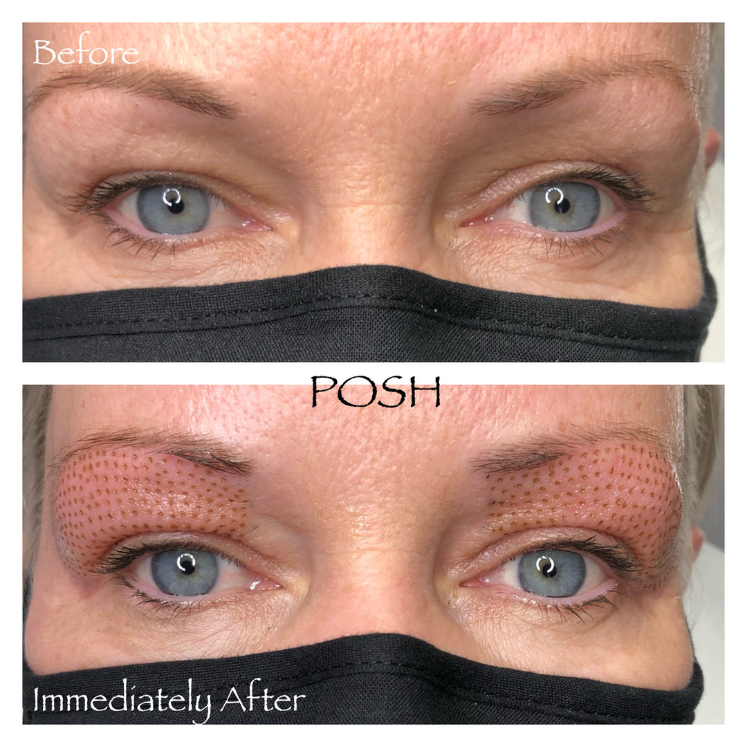 Posh Aesthetics, Santa Monica, Upper Eye Fibroblast Plasma Skin Tightening