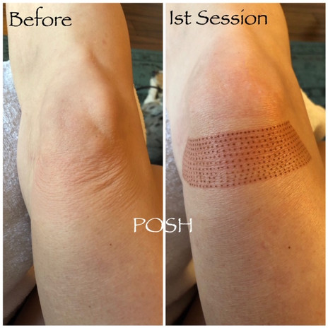 Posh Aesthetics, Santa Monica, Upper Knee Fibroblast Plasma Skin Tightening