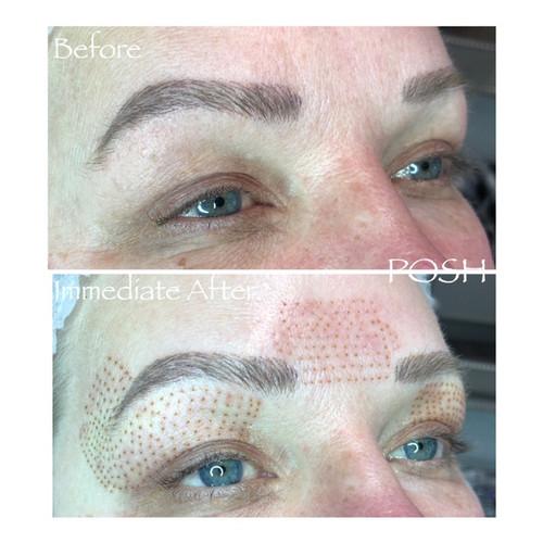 Posh Aesthetics, Santa Monica - Upper Eye Lift, Fibroblast Plasma Skin Tightening