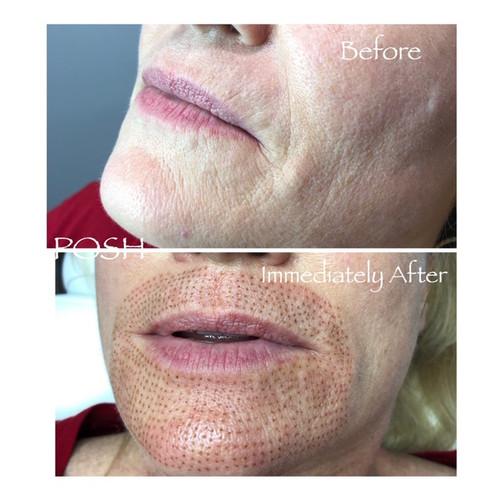 Posh Aesthetics, Santa Monica - Upper & Lower Lip Fibroblast Plasma Skin Tightening