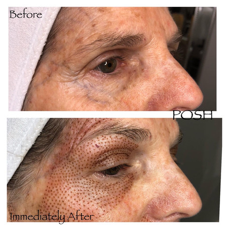 Posh Aesthetics, Santa Monica, Upper, Lower Eye & Crows Feet Fibroblast Plasma Skin Tightening