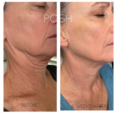 POSH Aesthetics, Brentwood, Los Angeles, CA