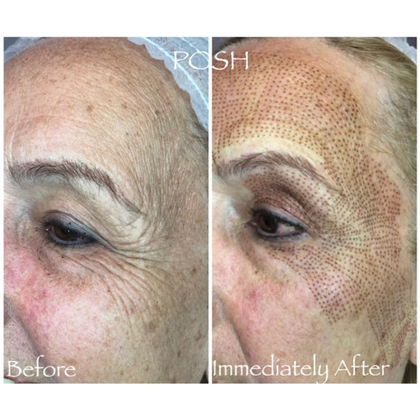 Posh Aesthetics, Santa Monica - Upper Eye Lift, Crows Feet, Forehead Lift Fibroblast Plasma Skin Tightening