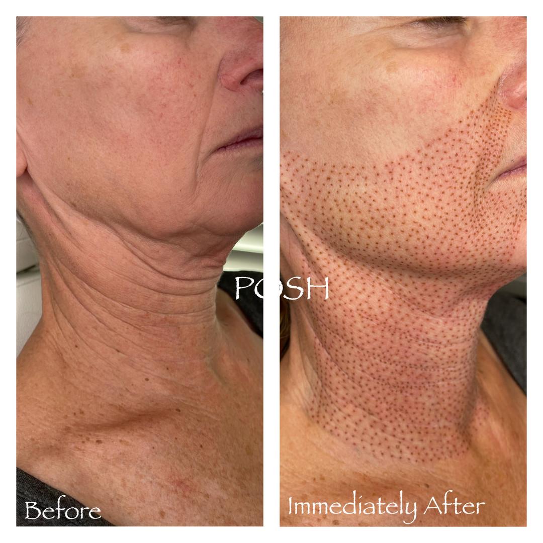 Posh Aesthetics, Santa Monica, Jowl & Full Neck Fibroblast Plasma Skin Tightening