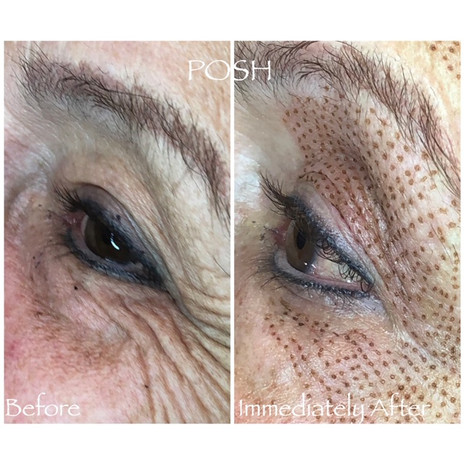 Posh Aesthetics, Santa Monica - Upper Eye Lift Fibroblast Plasma Skin Tightening