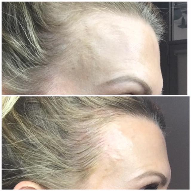 Posh Aesthetics, Santa Monica -  Hairline Microblading