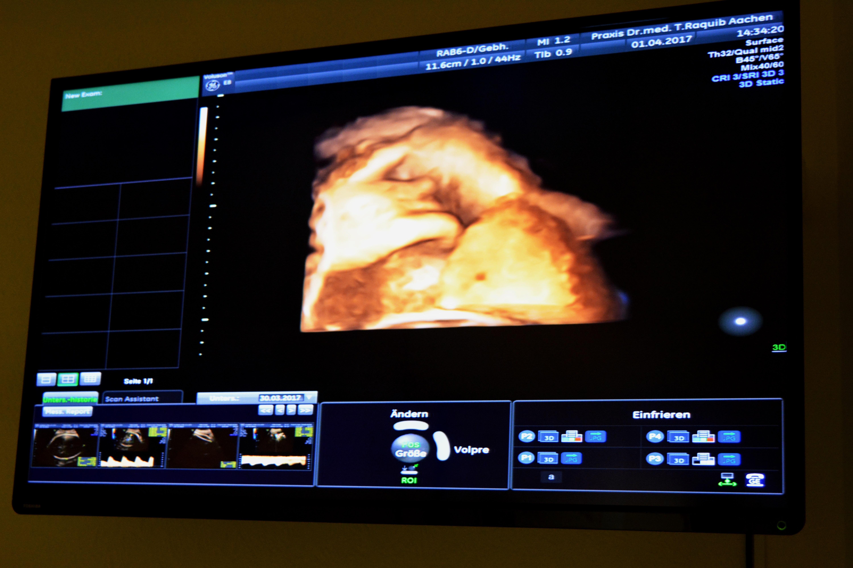 3D Ultraschall Bild