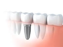 Zobu Implanti - ceļš līdz tiem.