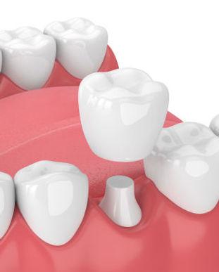 dental_crown-1.jpg