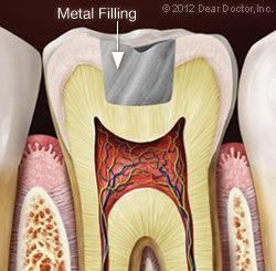 metal-filling.jpg