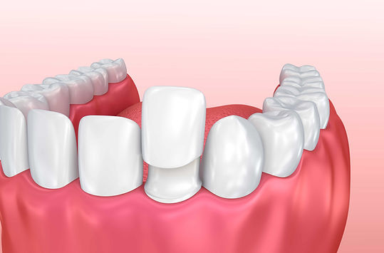 3-Benefits-of-Custom-Porcelain-Veneers.j