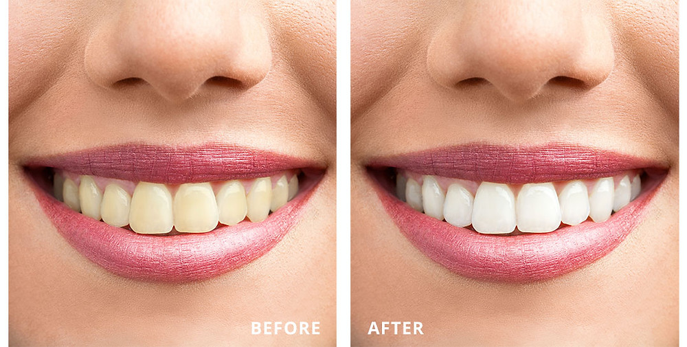 Philips Zoom Whitening Blog Cambridge Dentistry Orthodontics