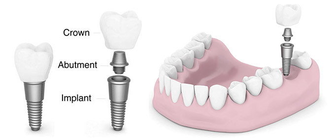 Considering Dental Implants?