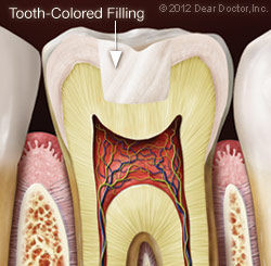 tooth-colored-filling.jpg