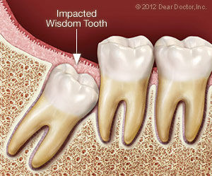 impacted-wisdom-tooth.jpg