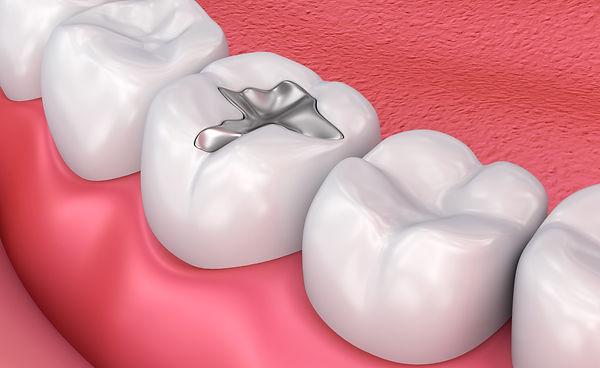 education-dental-filling.jpg