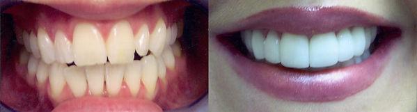 smile-4.jpg