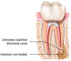 endodontic-retreatment-tooth-abscess-300