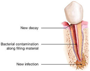 endodontic-retreatment-tooth-infection-3