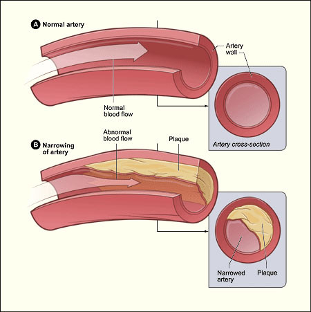Kolesterolvenlig kost