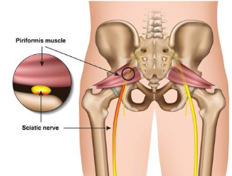 Anatomie du muscle piriforme