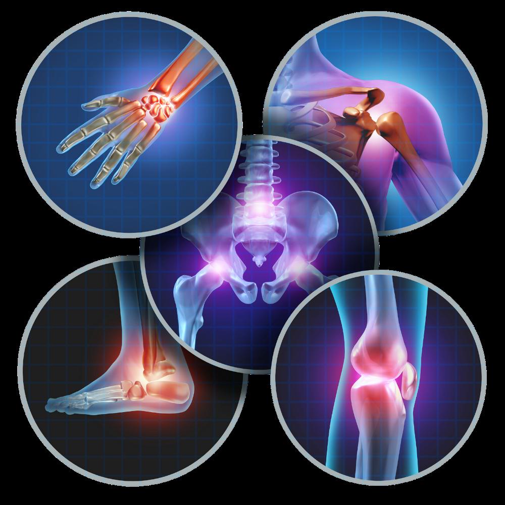 Articulations touchées par arthrose