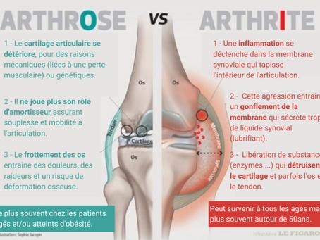 Les différences entre arthrose et arthrite