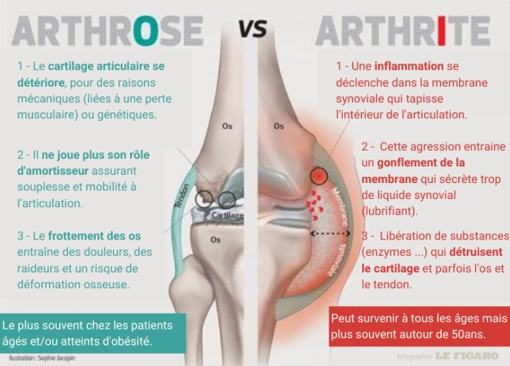 Arthrose vs arthrite