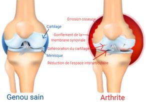 Affection inflammatoire des articulations : l'arthrite